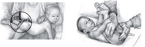 Baby Rectal Temperature Taking